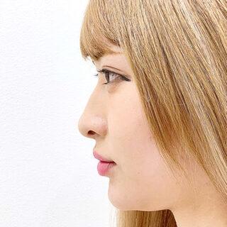 A CLINIC(エークリニック)銀座院の【切らない鼻先隆鼻術】A式鼻先シャープ術の症例写真(アフター)
