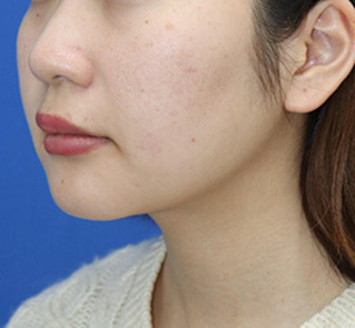 オザキクリニックLUXE新宿の顔の脂肪吸引(頬・あご下+メーラーファット+バッカルファット)の症例写真(アフター)