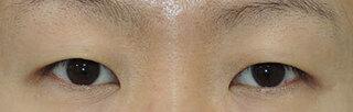 銀座S美容・形成外科クリニックの眼瞼下垂の症例写真(ビフォー)
