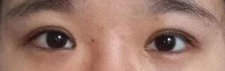 銀座S美容・形成外科クリニックの眼瞼下垂の症例写真(アフター)