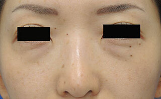 銀座S美容・形成外科クリニックの結膜脱脂+目の下クマ脂肪注入の症例写真(ビフォー)