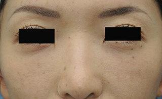 銀座S美容・形成外科クリニックの結膜脱脂+目の下クマ脂肪注入の症例写真(アフター)