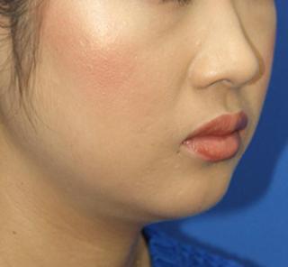 オザキクリニックLUXE新宿の顔の脂肪吸引(頬・顎下・バッカルファット)の症例写真(ビフォー)