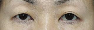 銀座S美容・形成外科クリニックの上眼瞼たるみ取りの症例写真(ビフォー)