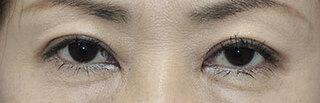銀座S美容・形成外科クリニックの上眼瞼たるみ取りの症例写真(アフター)