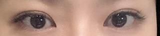 アイウェル整形外科の自然癒着、目元矯正の症例写真(アフター)