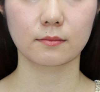 オザキクリニックLUXE新宿の顔の脂肪吸引(頬・顎下)の症例写真(ビフォー)