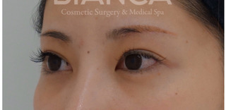 BIANCA銀座の眉下切開×ROOF切除×上瞼脂肪取りの症例写真(アフター)