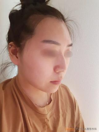 アイウェル整形外科の鷲鼻整形手術の症例写真(ビフォー)