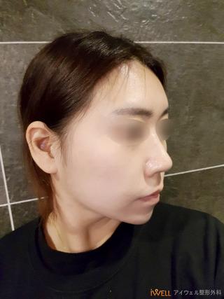 アイウェル整形外科の鷲鼻整形手術の症例写真(アフター)