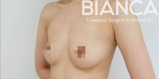 BIANCA銀座のシリコンインプラント豊胸の症例写真(ビフォー)