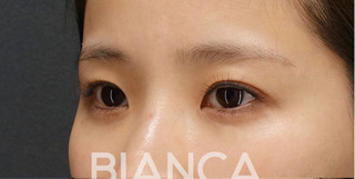 BIANCA銀座の目頭切開×目尻切開×鼻プロテーゼの症例写真(ビフォー)