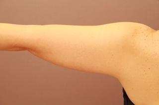 Mods Clinic(モッズクリニック)のベイザー脂肪吸引の症例写真(ビフォー)