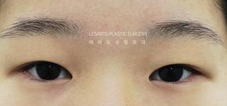 レアート整形外科の二重埋没・目つき矯正・目頭切開・ウィットゥイム・脂肪除去の症例写真(ビフォー)