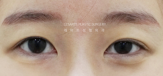 レアート整形外科の二重切開・目つき矯正・O.Y.Eトゥイムの症例写真(ビフォー)