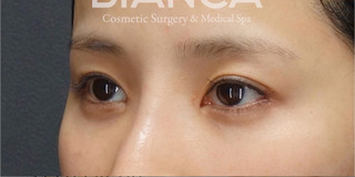 BIANCA銀座の目頭切開×目尻切開×鼻プロテーゼの症例写真(アフター)