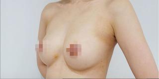 BIANCA銀座のシリコンインプラント豊胸の症例写真(アフター)