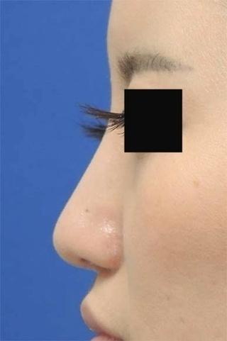 銀座S美容・形成外科クリニックの鼻中隔延長術・鼻プロテーゼの症例写真(アフター)