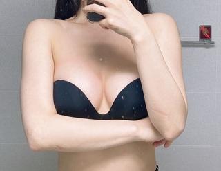 アイウェル整形外科の豊胸手術(メンターエキストラ)の症例写真(アフター)