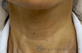 Original Beauty Clinic GINZAのグロースファクター(成長因子注射)の症例写真(ビフォー)