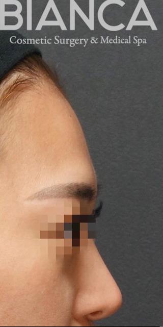 BIANCA銀座の額に脂肪注入の症例写真(ビフォー)