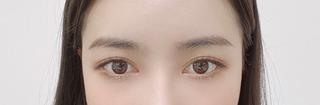 アイウェル整形外科の自然癒着、目頭切開、目尻切開の症例写真(アフター)