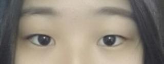 アイウェル整形外科の部分切開、目元矯正、目頭切開の症例写真(ビフォー)