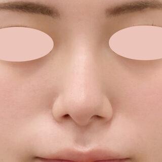 A CLINIC(エークリニック)銀座院の切開なしで整ったお鼻に【小鼻縮小術埋没法/ジャスミンノーズ/鼻先縮小術】の症例写真(アフター)