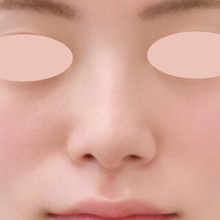 A CLINIC(エークリニック)銀座院の切開なしで整ったお鼻に【小鼻縮小術埋没法/ジャスミンノーズ/鼻先縮小術】の症例写真(ビフォー)