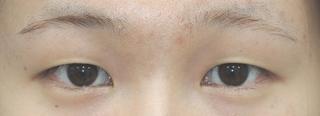 銀座S美容・形成外科クリニックの二重切開の症例写真(ビフォー)