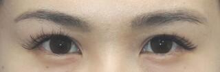 銀座S美容・形成外科クリニックの二重切開の症例写真(アフター)