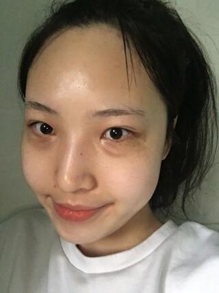 グランド整形外科の二重切開(2次)、目つき矯正、目頭切開、目の下脂肪再配置、骨切幅寄せ、、ワシ鼻矯正、鼻筋+鼻先、脂肪移植(額、顎先)の症例写真(ビフォー)