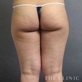 THE CLINIC(ザ・クリニック)名古屋院の太もものベイザー脂肪吸引の症例写真(ビフォー)