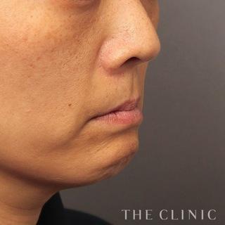 THE CLINIC(ザ・クリニック)東京院のほうれい線への脂肪注入(SRF注入)の症例写真(ビフォー)