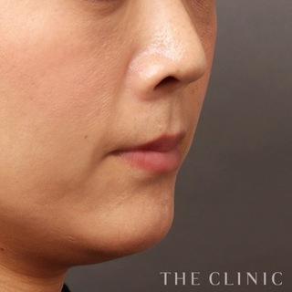 THE CLINIC(ザ・クリニック)東京院のほうれい線への脂肪注入(SRF注入)の症例写真(アフター)
