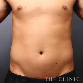 THE CLINIC(ザ・クリニック)東京院のお腹の脂肪吸引(ベイザー4D)の症例写真(ビフォー)