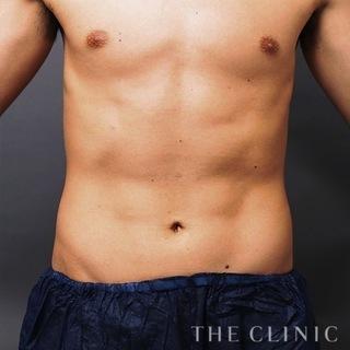 THE CLINIC(ザ・クリニック)東京院のお腹の脂肪吸引(ベイザー4D)の症例写真(アフター)