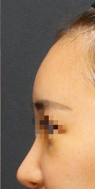 BIANCA銀座の額に脂肪注入の症例写真(アフター)