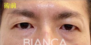 BIANCA銀座の男性のアンチエイジング(DT中)の症例写真(ビフォー)