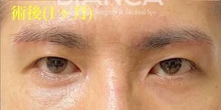 BIANCA銀座の男性のアンチエイジング(DT中)の症例写真(アフター)