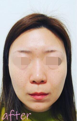 銀座TAクリニックのキツネシルエット ダイヤの症例写真(アフター)