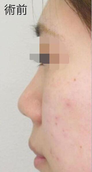 福岡TAクリニックの鼻尖縮小術+4Dノーズ+鼻翼縮小術+鼻孔縁挙上術の症例写真(ビフォー)