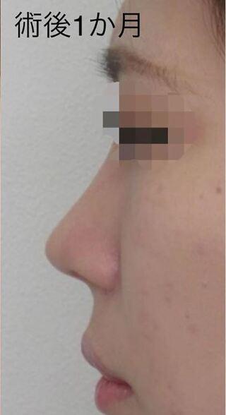 福岡TAクリニックの鼻尖縮小術+4Dノーズ+鼻翼縮小術+鼻孔縁挙上術の症例写真(アフター)