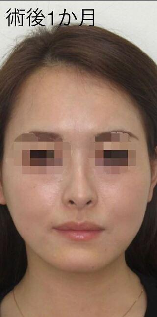 福岡TAクリニックのツヤ肌コラーゲンリフト®︎の症例写真(アフター)