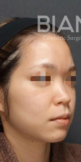 BIANCA銀座の鼻と輪郭の複合手術の症例写真(ビフォー)