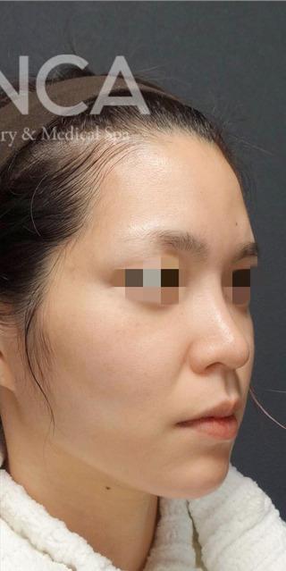 BIANCA銀座の鼻と輪郭の複合手術の症例写真(アフター)