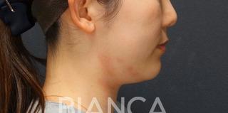 BIANCA銀座の最新LIPO HIFUで二重顎撃退の症例写真(ビフォー)