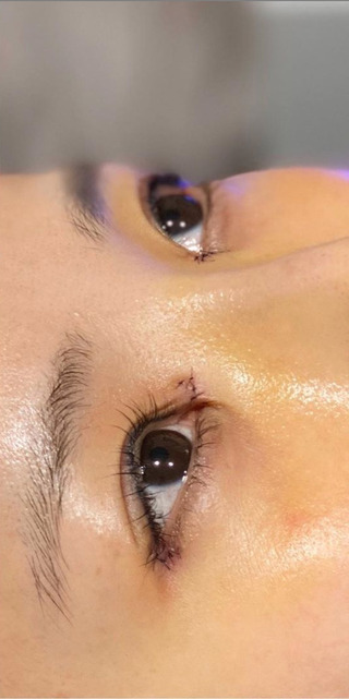 BIANCA銀座の目頭切開×目尻切開×鼻プロテーゼ の症例写真(アフター)
