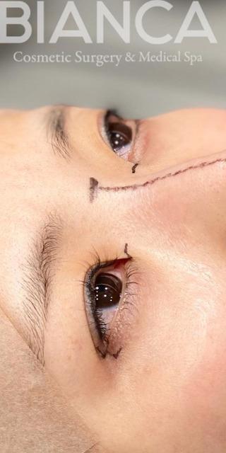 BIANCA銀座の目頭切開×目尻切開×鼻プロテーゼ の症例写真(ビフォー)