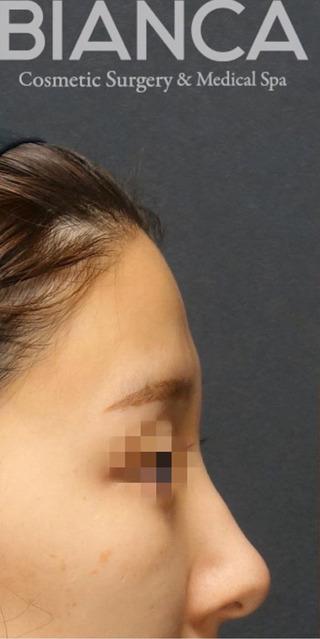 BIANCA銀座の脂肪注入でSライン形成の症例写真(ビフォー)